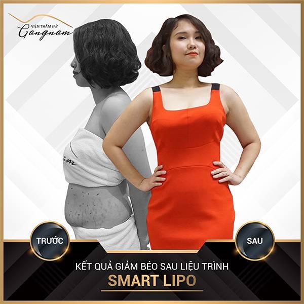 Một khách hàng cũng tin tưởng thực hiện giảm béo bụng Smart Lipo tại Mega Gangnam