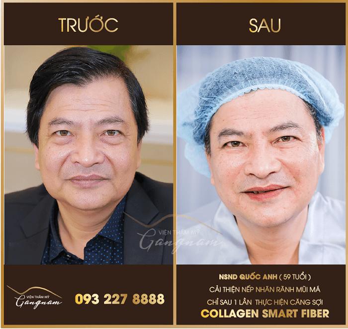 Căng da mặt cho nam bằng chỉ collagen
