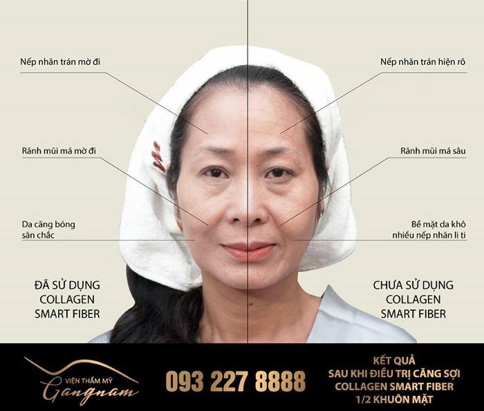 Căng da mặt bằng chỉ cho hiệu quả nhanh và lâu dài