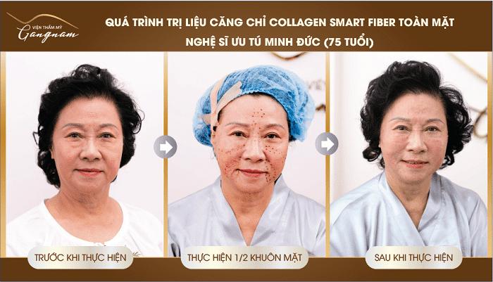 Ưu điểm của căng da mặt bằng chỉ Collagen