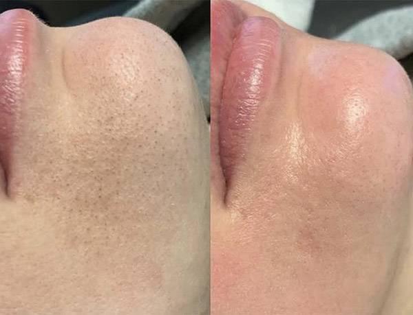 Hydrafacial giúp thải độc tố, bụi bẩn sâu tận cùng lỗ chân lông
