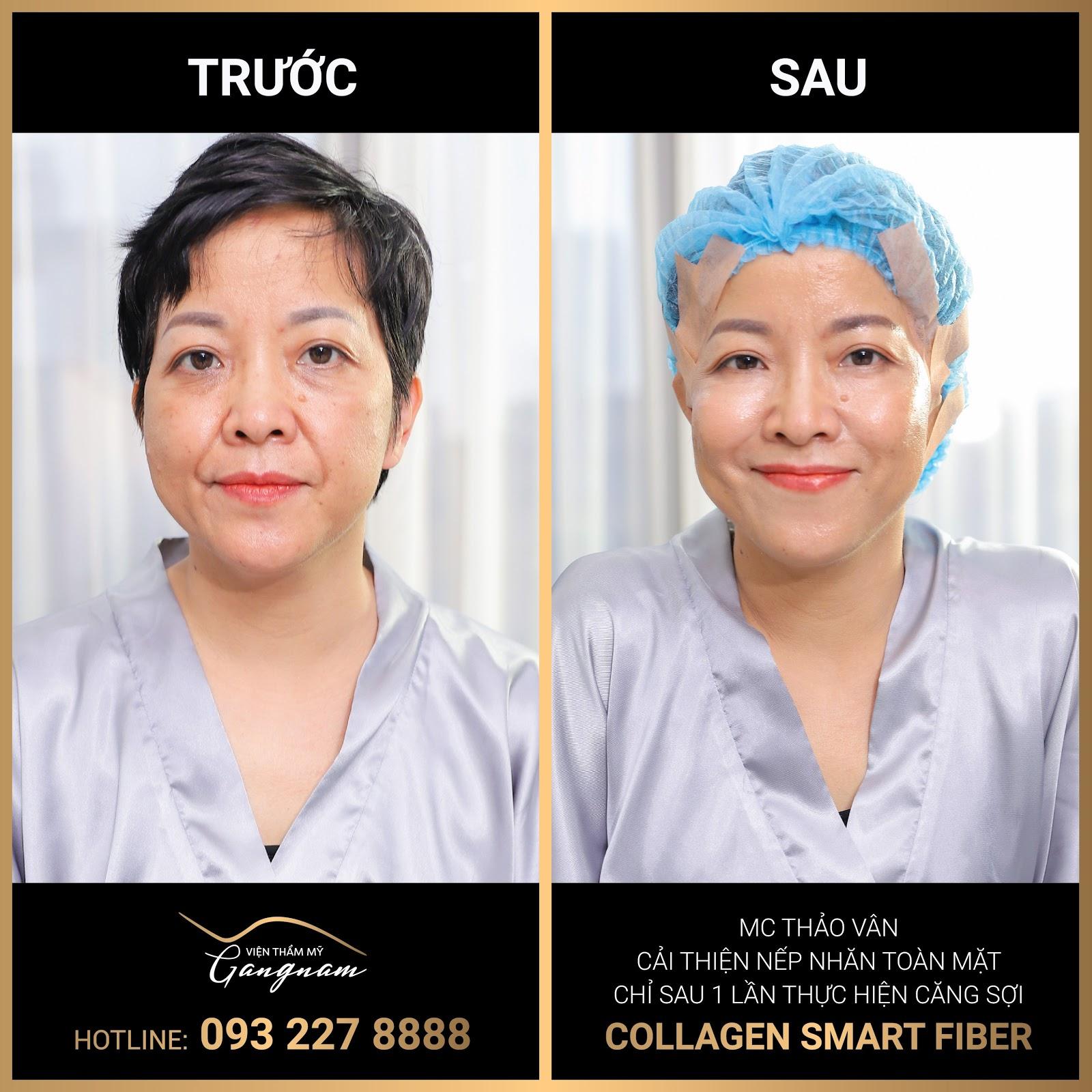 """Chỉ 60 phút căng chỉ Collagen Smart Fiber MC Thảo Vân đã """"lấy lại"""" được chục tuổi"""
