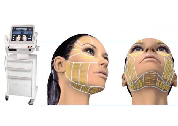 Công nghệ nâng cơ trẻ hóa da Ultherapy Tripple
