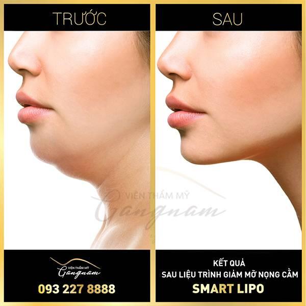 Hình ảnh khách hàng trước và sau giảm béo mặt bằng công nghệ Smart Lipo