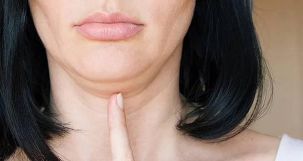 Vùng mỡ nọng cằm khiến gương mặt thiếu tươi tắn cũng như dễ dẫn đến một số bệnh lý không tốt