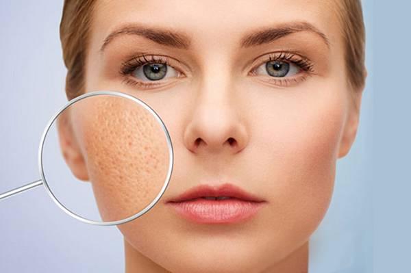 Công nghệ trị sẹo rỗ Martrix Hàn Quốc có tác dụng làm tăng sinh các collagen mới giúp làm đầy và trị sẹo lõm, sẹo rỗ hiệu quả
