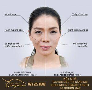 So sánh sự khác biệt: Kết quả sau khi điều trị căng sợi Collagen 1/2 khuôn mặt