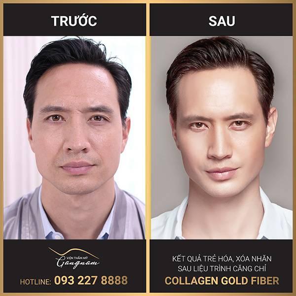 Diễn viên Kim Lý lựa chọn trẻ hóa da bằng chỉ Collagen Gold Fiber bởi độ hiệu quả và an toàn