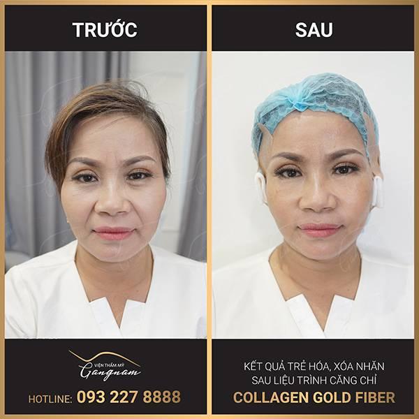 Nếp nhăn mí mắt và bọng mắt được cải thiện nhanh chóng sau căng chỉ collagen - vàng