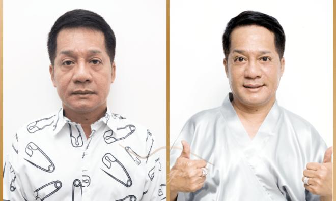 Danh hài Minh Nhí trước và sau khi căng da bằng chỉ Collagen Smart Fiber