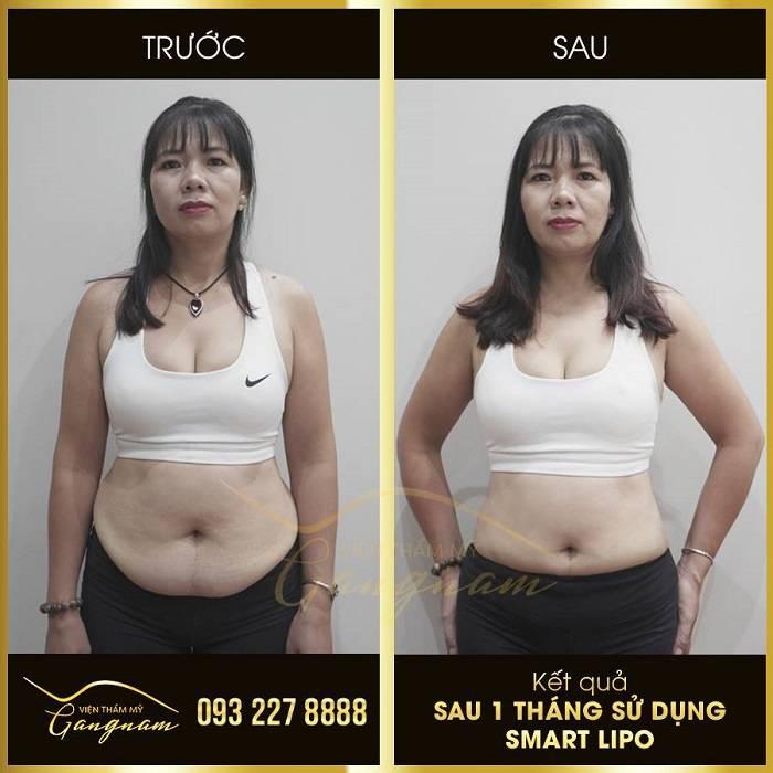 Cách giảm béo mặt nhanh bằng phương pháp giảm béo Smart Lipo