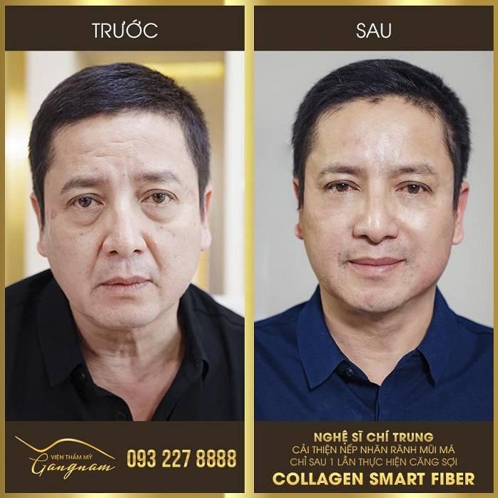 Cách làm căng da mặt cho nam giới bằng căng chỉ collagen smart fiber
