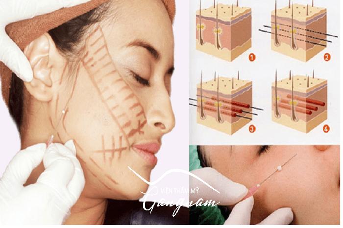Căng da mặt có hại không?