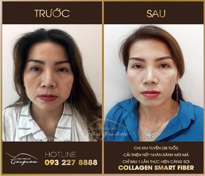 Vì sao nên làm trẻ hóa da mặt?