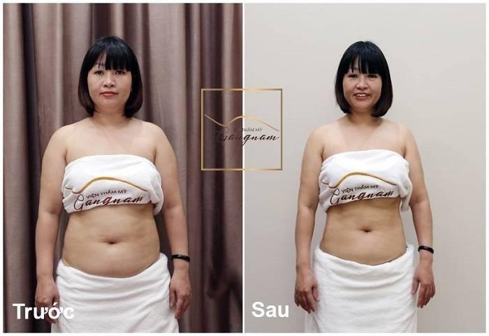 Giảm béo mặt cấp tốc bằng công nghệ giảm béo mặt Smart Lipo