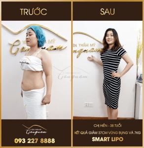 Giảm béo bụng sau sinh bằng phương pháp giảm béo Smart Lipo