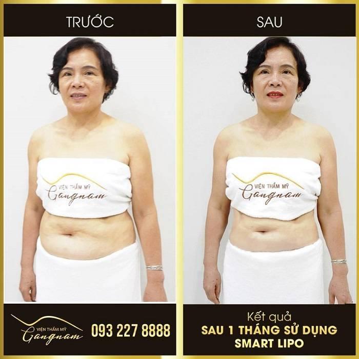 Giảm béo toàn thân an toàn bằng công nghệ giảm béo Smart Lipo
