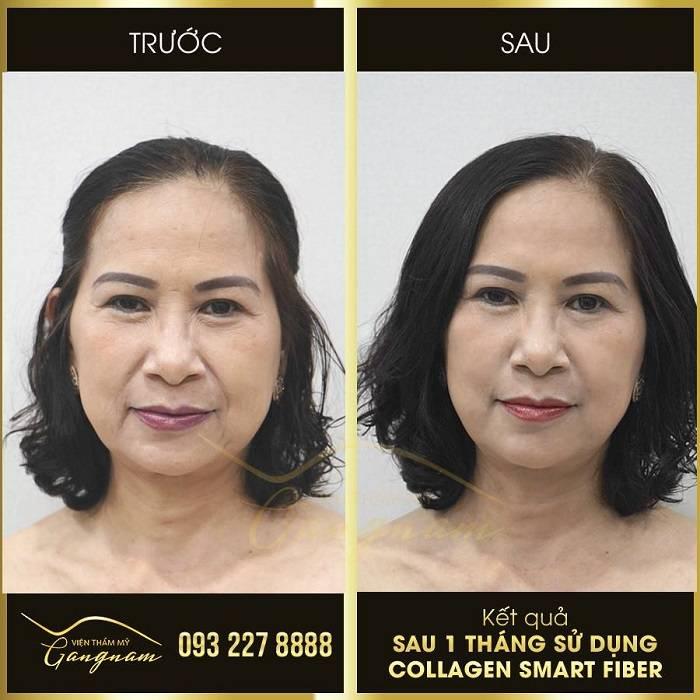 Phương pháp làm trẻ hóa da mặt bằng căng chỉ
