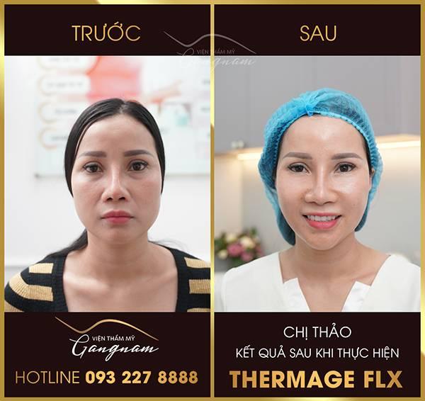 Chị Thao trước và sau khi căng da với công nghệ Thermage FLX