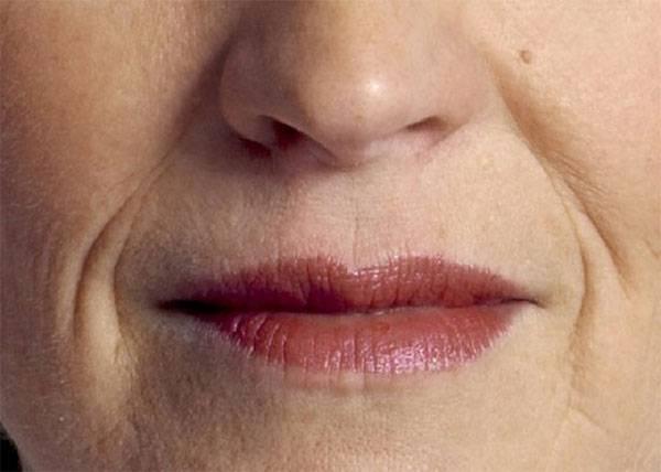 Hiện nay, nếp nhăn khóe miệng không chỉ gặp ở phụ nữ lớn tuổi, mà phụ nữ ngoài 20 cũng có thể gặp phải tình trạng này - Hình minh họa.