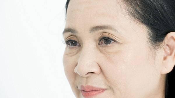 Nếp nhăn mắt có thể xuất hiện sớm từ độ tuổi 25 nếu không được chăm sóc kĩ.