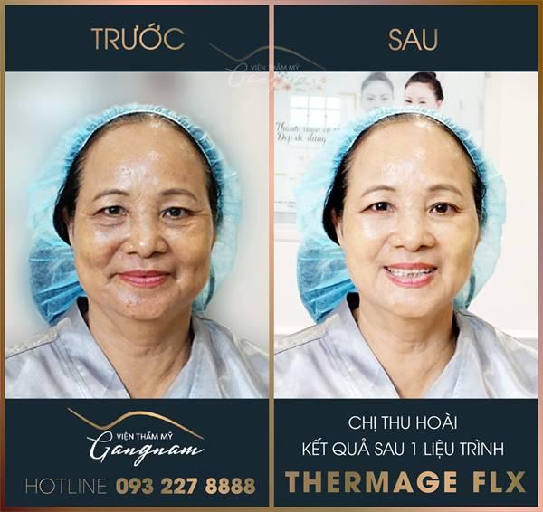 Chị Thu Hoài sau 1 giờ thực hiện liệu trình trẻ hóa da Thermage FLX của viện thẩm mỹ Mega Gangnam