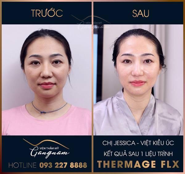 Nhiều nếp nhăn đã hoàn toàn biến mắt sau khi chị Jessica (Việt Kiều Úc) sử dụng 1 liệu trình Thermage FLX của viện thẩm mỹ Mega Gangnam