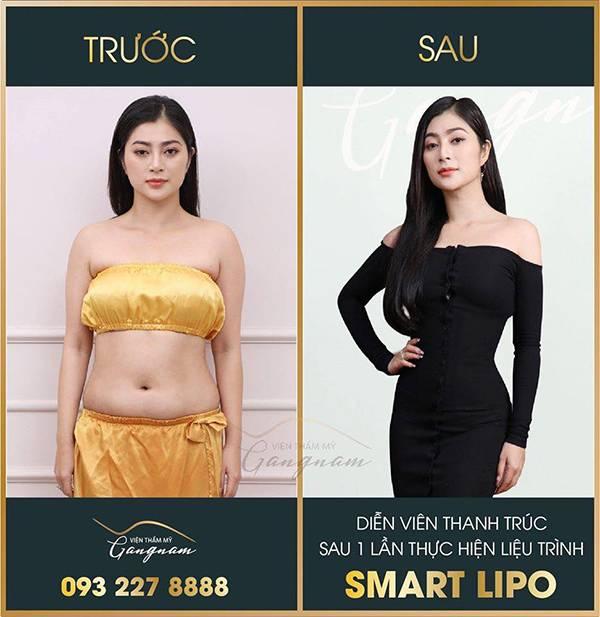 Bí quyết giảm lấy lại vóc dáng Thanh Trúc là giảm béo Smart Lipo