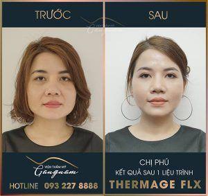 Chị Phú đã tin tưởng lựa chọn Mega Gangnam để thực hiện liệu trình Thermage FLX