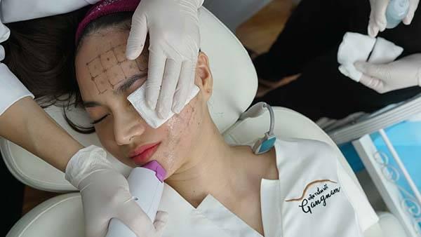 Thermage FLX cũng là phương pháp xóa nhăn, căng da mặt được nhiều chị em lựa chọn, trong đó có diễn viên Đinh Ngọc Diệp