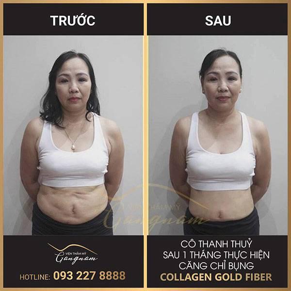Cô Thanh Thuỷ với kết quả 1 tháng sau khi căng da bụng không còn dấu hiệu chảy xệ, chùng nhão