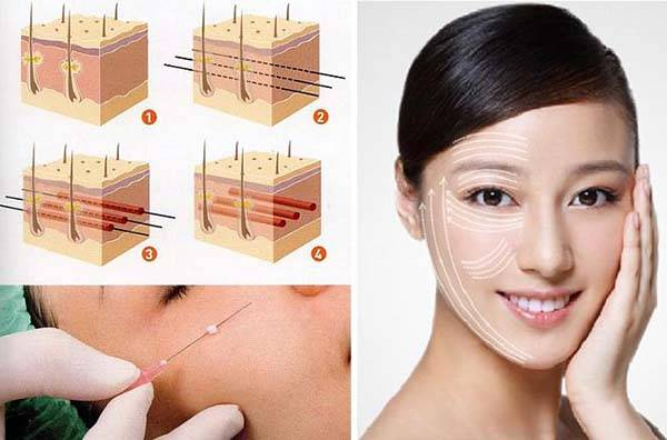 Phương pháp căng da mặt bằng chỉ collagen nhanh chóng trở nên phổ biến