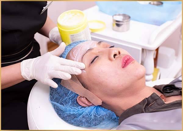Quy trình thực hiện căng da mặt bằng chỉ Collagen Smart Fiber - Bước 3