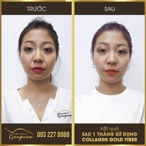 Chị Hoàng Huyền My (Thanh Xuân, Hà Nội) rất hài lòng khi làm đẹp tại viện thẩm mỹ Mega Gangnam