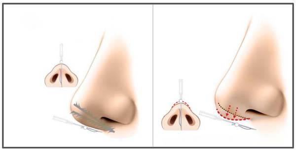 Phương pháp căng chỉ mũi Collagen Gold Fiber có thể nâng cao chóp mũi mà không cần thực hiện phẫu thuật