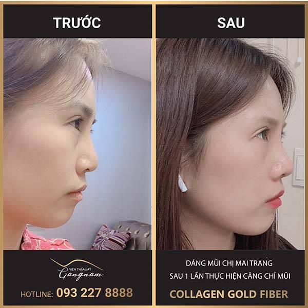 Khách hàng thực hiện căng chỉ collagen mũi tập trung vào phần sóng mũi và nâng cao chóp mũi