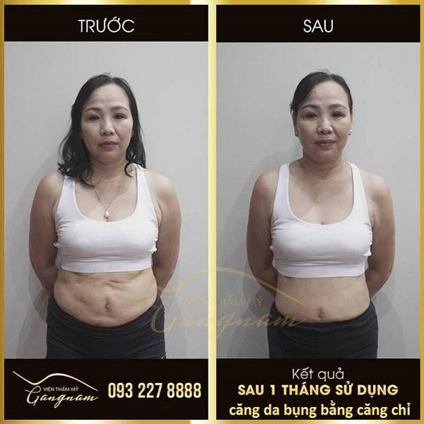 Căng da bụng bằng chỉ giá bao nhiêu? Chị Thanh Nhàn (43 tuổi) sau 1 tháng căng da bụng bằng chỉ lai Collagen Gold Fiber tại Mega Gangnam