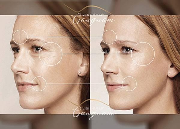 Căng da mặt bằng chỉ giúp xử lý triệt để vấn đề lão hoá da: nếp nhăn, khoé cười, da trùng chảy