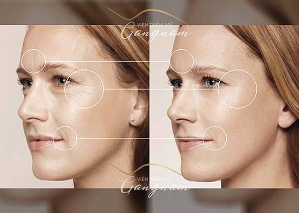 Căng da mặt bằng chỉ giúp khắc phục triệt để tình trạng da chùng chảy, thiếu sức sống, cải thiện 95% nếp nhăn, cho vẻ ngoài trẻ ra tới 10 tuổi