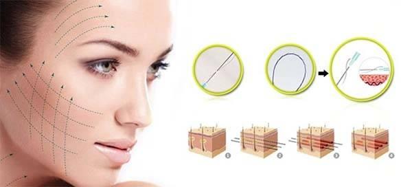 Các sợi chỉ vàng liên kết với nhau tạo thành một mạng lưới dưới bề mặt da