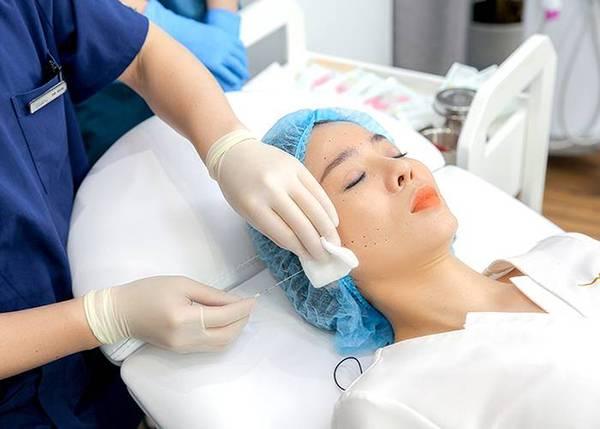 Quy trình căng da với sợi Collagen Gold Fiber - Bước 4