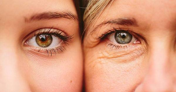 Căng chỉ vùng mắt là một trong các phương pháp giúp lấy lại vẻ đẹp thanh xuân cho đôi mắt hiệu quả