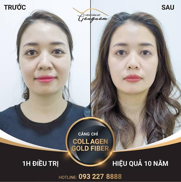 Hình ảnh cô giáo Ngọc Anh với làn da sáng mịn, không còn thâm nám sau khi căng chỉ Collagen Gold Fiber