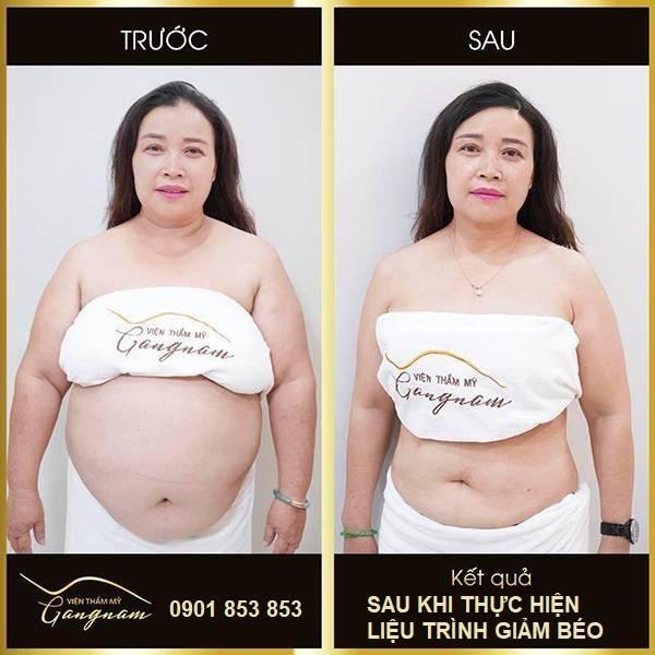 Chị Lan sau khi giảm béo bằng công nghệ Smart Lipo tại Mega Gangnam