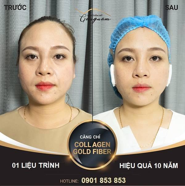 Chị Phương căng chỉ Collagen Gold Fiber