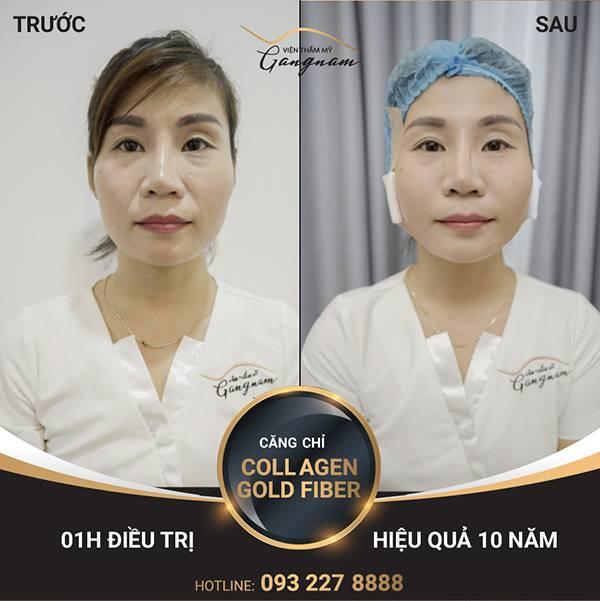 Chị Thảo thực hiện căng chỉ Collagen Gold Fiber cho nếp nhăn vùng miệng kết hợp với căng da cả rãnh má và vùng mắt