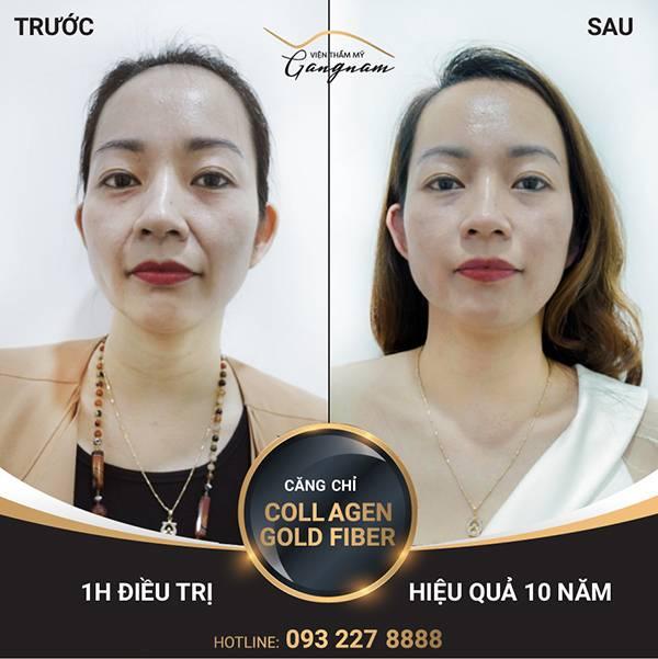 Chị Tú Anh trẻ đẹp trông thấy ngay sau khi vừa hoàn thành liệu trình Collagen Gold Fiber