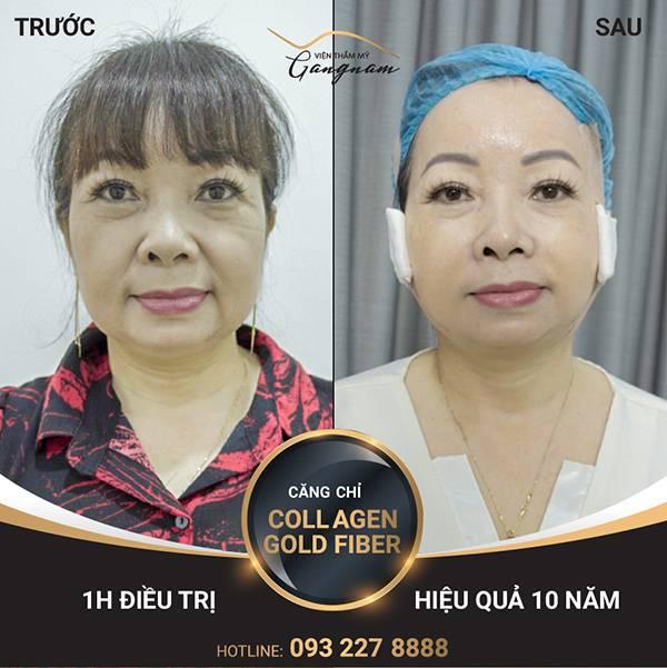 Nếp nhăn dưới bọng mắt được cải thiện nhanh chóng sau căng chỉ collagen - vàng