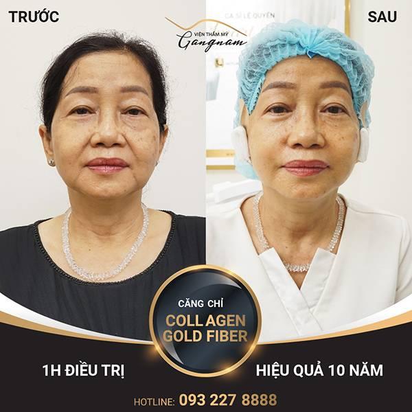 Cô Minh Ánh cải thiện và xóa nếp nhăn ở mắt tới 80% ngay sau 1 giờ thực hiện căng chỉ Collagen Gold Fiber