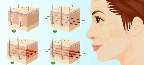 """Công nghệ căng da mặt bằng chỉ vàng 24K với """"ma trận"""" liên kết chỉ vàng dưới da, giúp kéo cao cơ chùng chảy, lấp đầy các rãnh nhăn nhờ cơ chế kích thích tăng sinh collagen"""